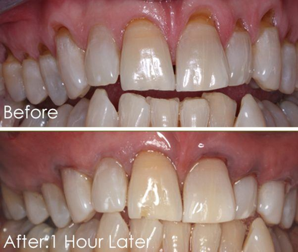 Smile before and after Chao pinhole surgical technique treatment