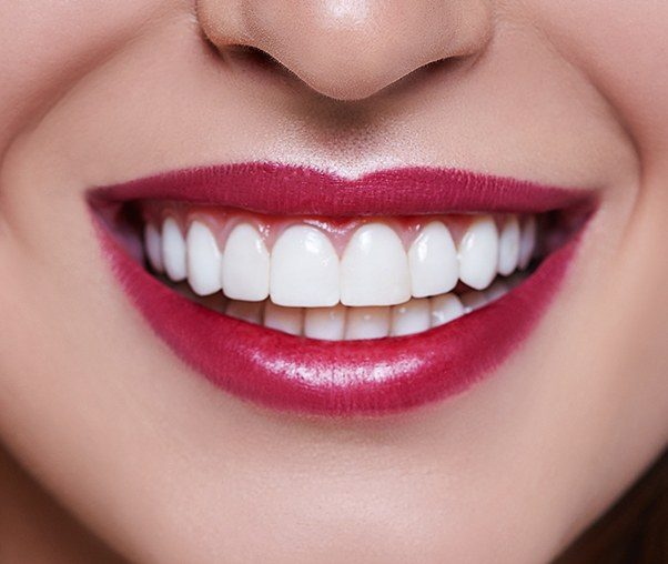 Woman's smile after gum recontouring treatment