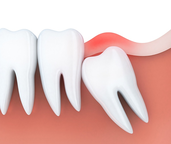 Animated smile with impacted wisdom tooth