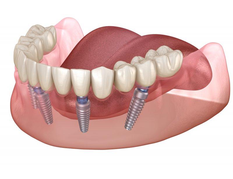 implant dentures in Carrollton