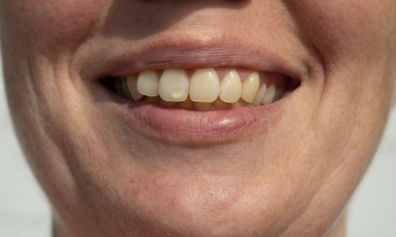 man with tooth stains